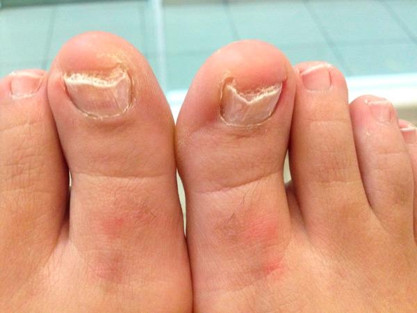 La solución del hongo entre los dedos en los pies
